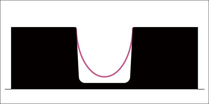 凹型で成形を行う時に生じるしわをブリッジと呼びます。